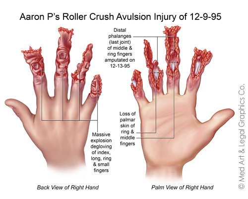 Crush Avulsion Injury And Toe Transfer Surgery